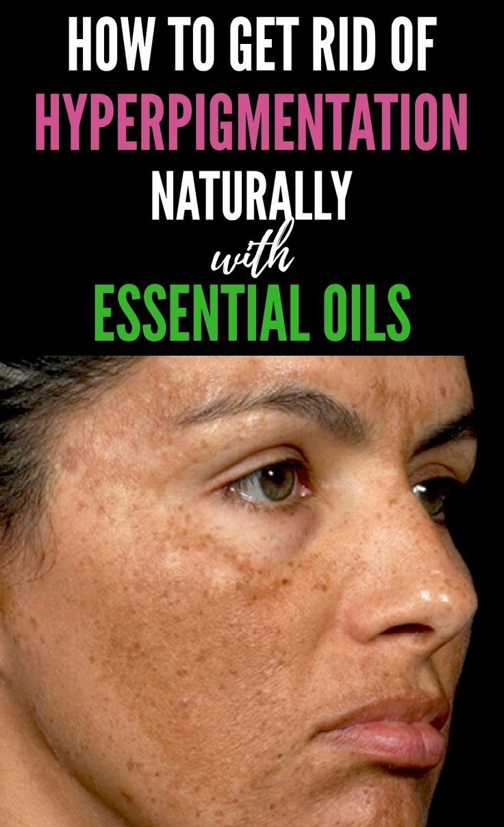 Get rid of hyperpigmentation naturally