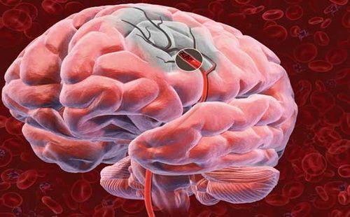 Atacul vascular cerebral, șanse de recuperare prin intervenție în primele ore de la apariția simptomelor