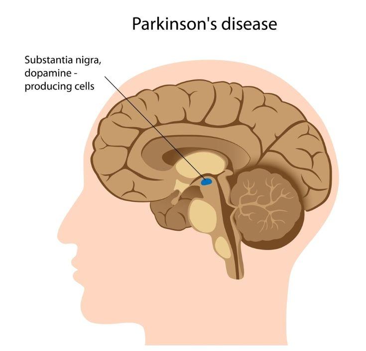 Todo sobre la enfermedad de #Parkinson: causas, síntomas y tratamiento. Medidas a adoptar en el día a día, desde qué comer hasta qué tipo de ejercicios realizar. #alimentatubienestar