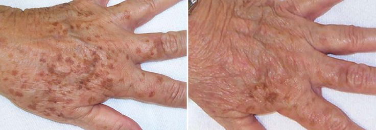 Age spots, also known as brown spots on the hands are due to an abnormal concentration of melanin in an area.  Our laser technology can treat the hands  to restore the colour and texture.  These hands have shown a great improvement and big reduction in pigmentation.