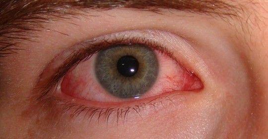 Conjuntivitis: Es la hinchazón (inflamación) o infección de la membrana que recubre los párpados (conjuntiva).