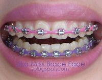 lilac and pink braces