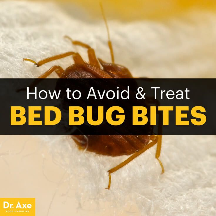Bed bug bites - Dr. Axe http://www.draxe.com #health #holistic #natural