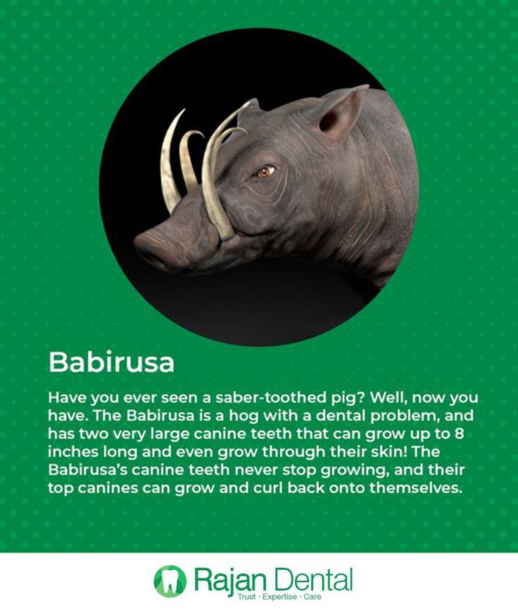 Have You Ever Seen A Saber-toothed Pig? Well, Now You Have. The Babirusa Is A Hog With A Dental