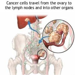 Factors Affecting Ovarian Cancer Prognosis, exactly how it did with my mom