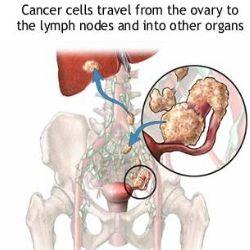 Factors Affecting Ovarian Cancer Prognosis