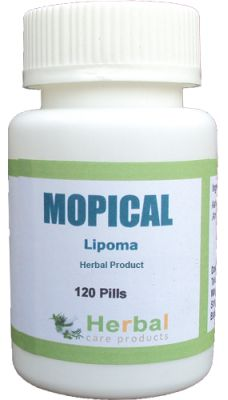 Lipoma : Symptoms, Causes and Natural Treatment - Herbal Care Products