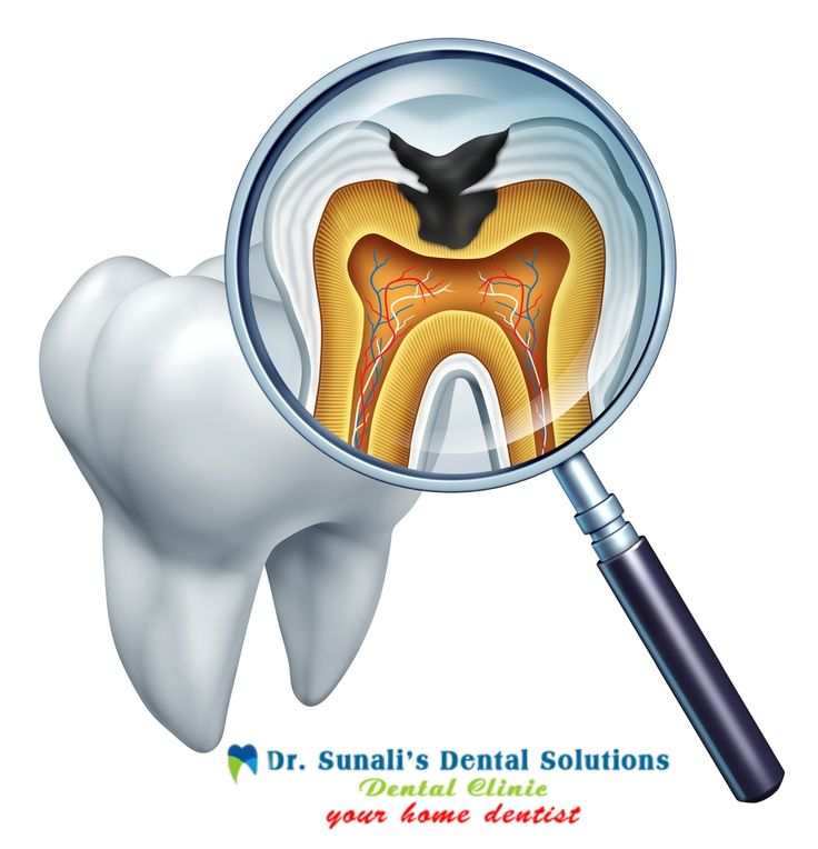 Repair and save a tooth that is badly decayed smile