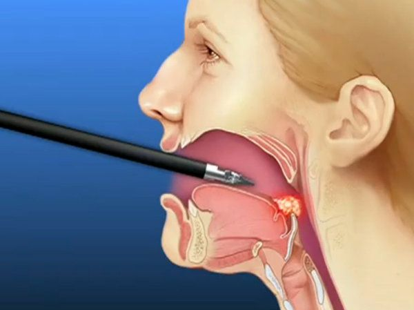Doctors are treating sleep apnea with a type of robotic surgery typically used to remove cancerous tumors at the back of the throat.