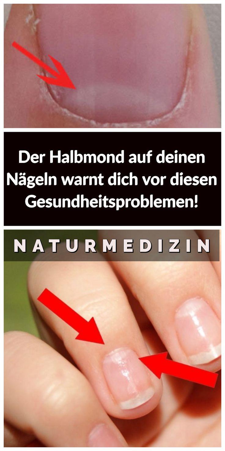 Der Halbmond auf deinen Nägeln warnt dich vor diesen Gesundheitsproblemen!