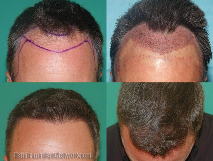18 best hair transplant ludhiana hair fall hair grow hair loss when it comes to cosmetic hair surgery hair loss patient find two main procedures fut and fue fue is an expensive surgery but it is least invasive urmus Gallery