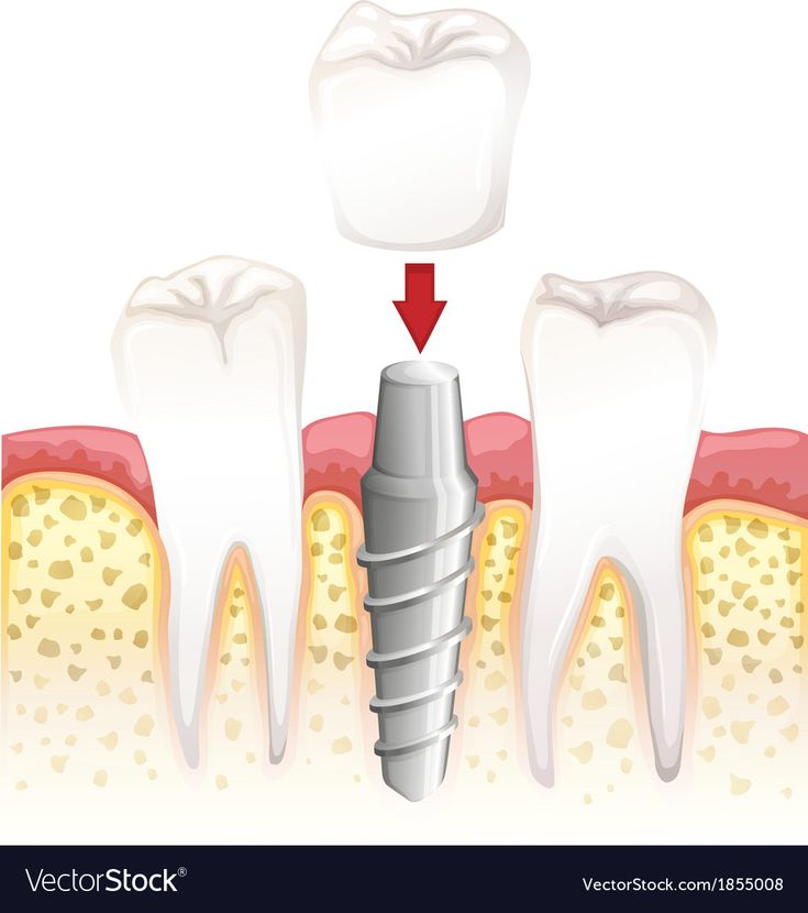 Dental crown procedure vector image on vectorstock in 2020