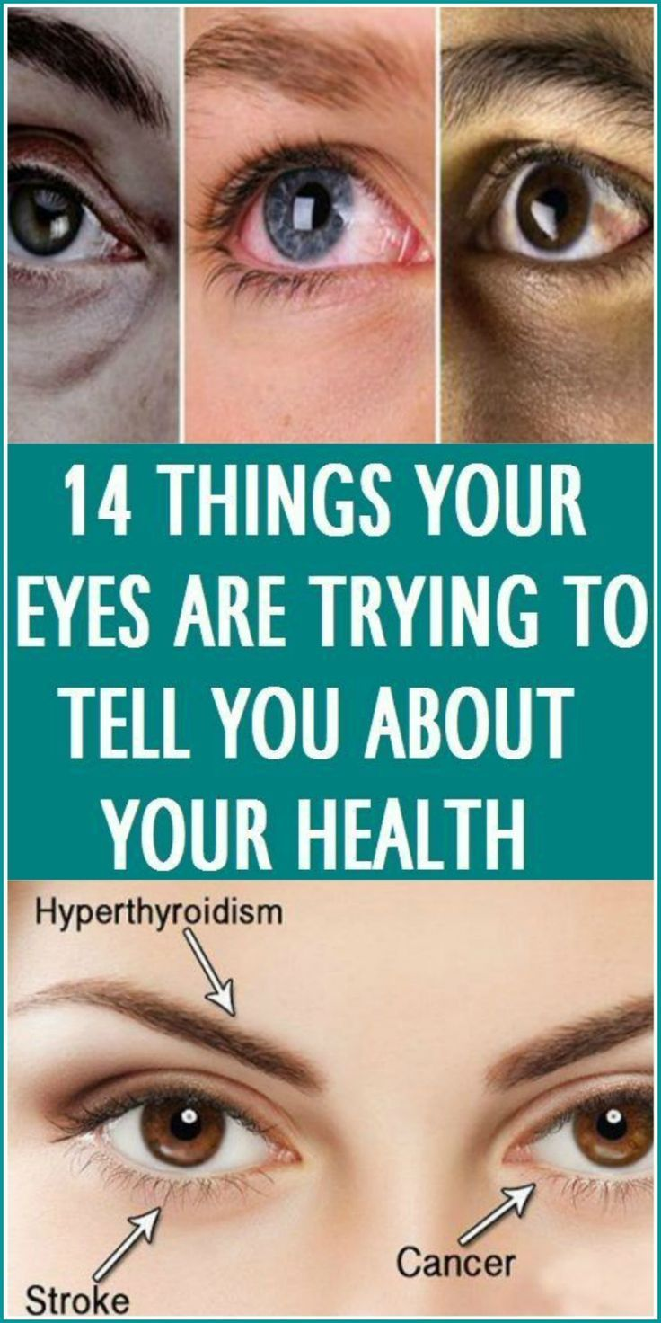 6e5928f0237 Eyes aren t just the window to your soul — they also offer a glimpse into  your health. Changes in your eyes can signal vision problems