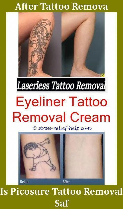 Is Laser Tattoo Removal Safe Red Tattoo Removal Before And After