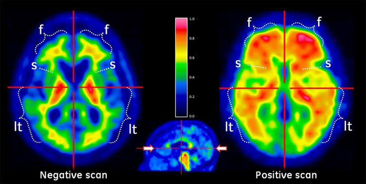 This report provides information on the current Positron Emission Tomography (PET) scanner and cyclotron install base in Japan.