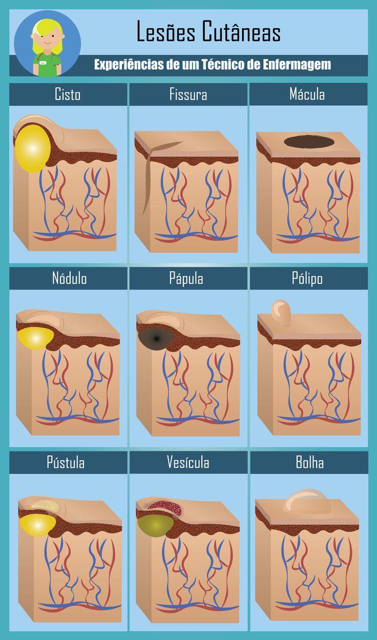 lesoes pele.png