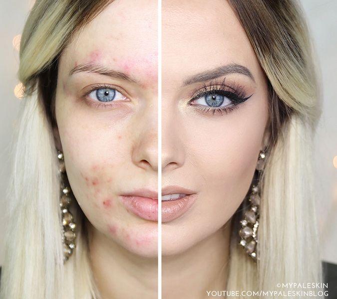 I trucchi per una pelle perfetta anche con i brufoli: la parola alla blogger My Paleskin