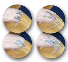 Shoulder and Elbow Surgery: Rotator cuff tears-Frequently asked questions