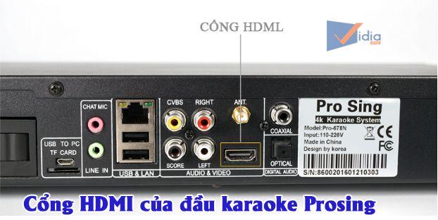 Dưới đây là một số cổng kết nối dàn âm thanh karaoke gia đình phổ biến mà bạn hay gặp.