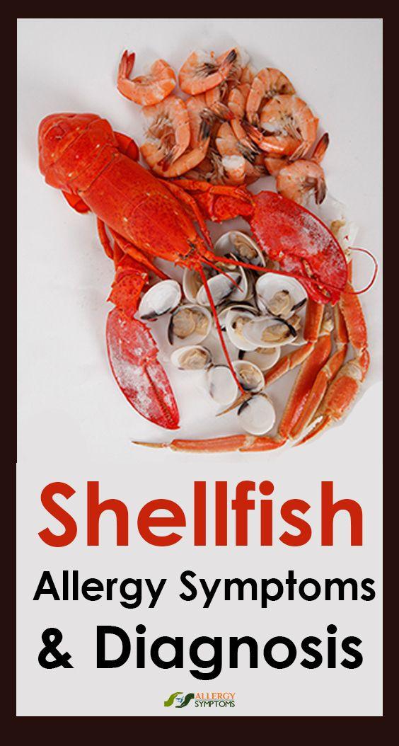 how long do shellfish allergy symptoms last