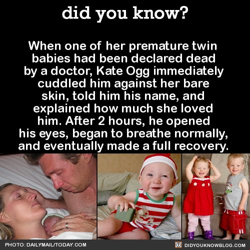 When one of her premature twin babies had been declared dead by a doctor, Kate Ogg immediately cuddled him against her bare skin, told him his name, and explained how much she loved him. After 2 hours, he opened his eyes, began to breathe normally, and eventually made a full recovery.That was in 2010. Now the twins are old enough to understand their story.When they were first told of their miracle birth, Emily burst into tears and wouldn't stop hugging her brother Jamie