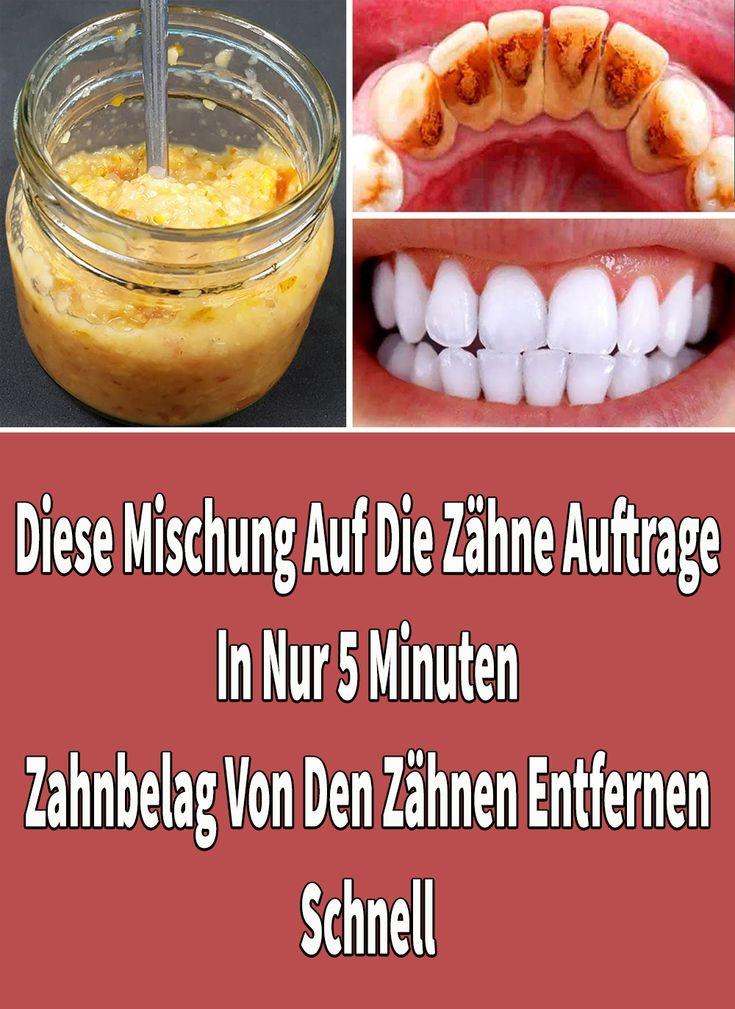 Diese Mischung Auf Die Zähne Auftragen In Nur 5 Minuten