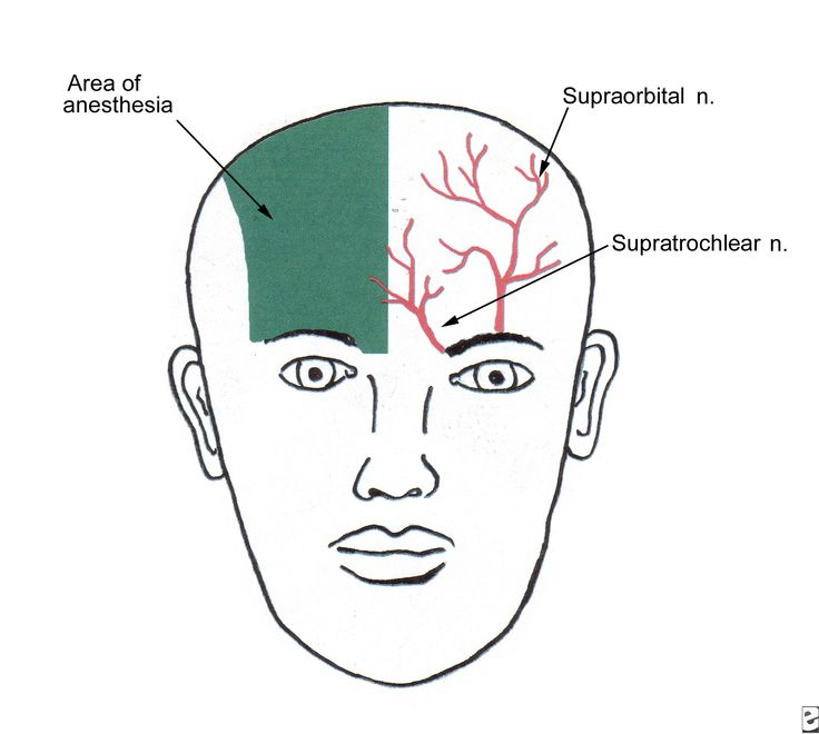 supratrochlear and supraorbital nerves - branches of frontal nerve