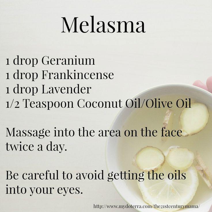 doterra essential oils pregnancy labour melasma geranium frankincense lavender…