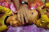 """A legtöbb összenőtt ikerpár Indiában vagy Afrikában lát napvilágot. Magyarországon 1991 óta nem született sziámi ikerpár. Az angolszász szaknyelvben a """"sziámi iker"""" kifejezés tabu."""