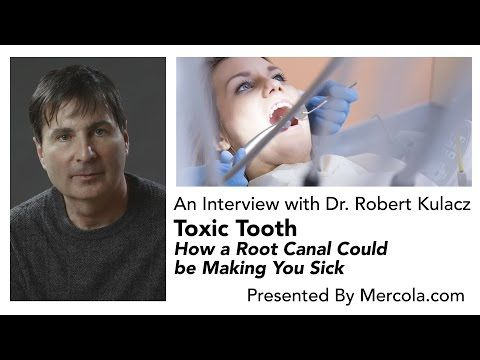 "Dr Mercola Interviews Dr Robert Kulacz —""Toxic Tooth: How A Root Canal Could Be Making You Sick"""