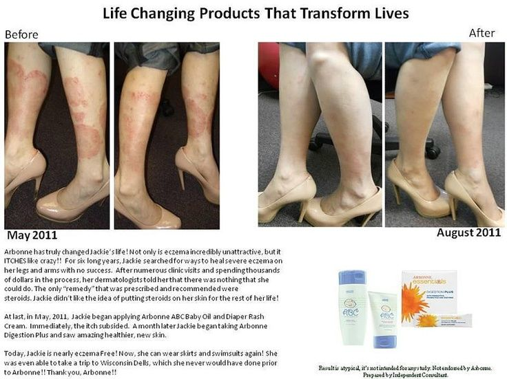 22 Best Arbonne Before And After Images On Pinterest