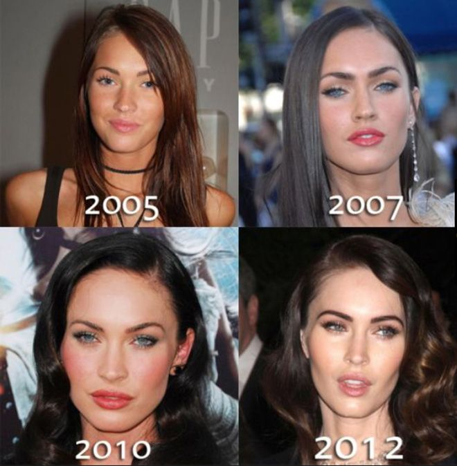 Megan Fox - Face plastic surgery – chin, lips and nose – before and after