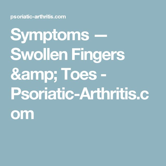Symptoms — Swollen Fingers & Toes - Psoriatic-Arthritis.com