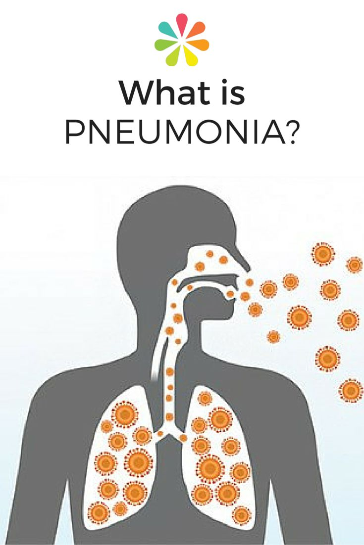 There are many types of this common infection and all of them, if left untreated, can lead to serious complications and even death. #pneumonia #everydayhealth | everydayhealth.com
