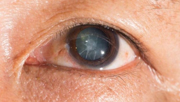 Hoy te diremos sobre la enfermedad de las cataratas en los ojos,a catarata recibe este nombre de la creencia antigua que la visión borrosa y