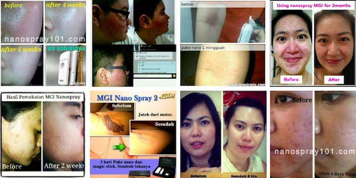 Testi Pengguna Nano Spray MCI