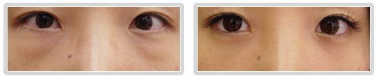 The New 2012 CO2 LASER Eye Bag Removal The Eye Cosmetic Surgery.
