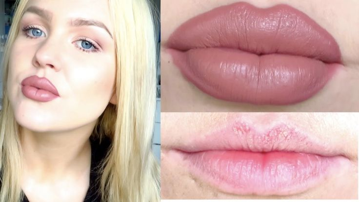how to make lips bigger without surgery or makeup