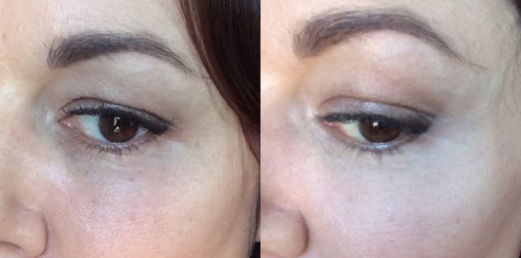 How to disguise under eye discolouration in a way that doesn't emphasise under eye wrinkles. I've been playing around with my under eye makeup for a while, trying to get it to look righ…