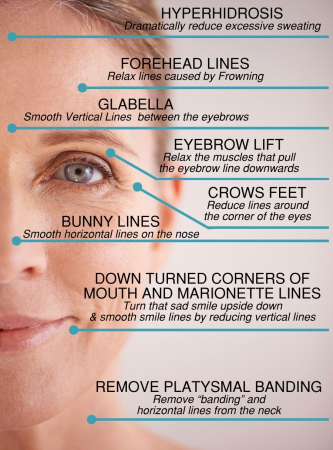 firestone air lift wiring diagram for eyebrow lift diagram #10