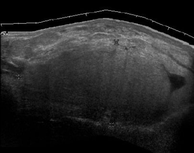 Head and Neck Lipomas: Sonographic Appearance - AJNR
