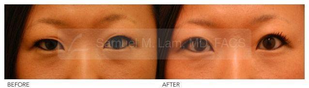 Asian Blepharoplasty Photo – Female Asian Blepharoplasty (Double Eyelid) Surgery… –