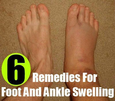 Natural Cure Ankle Swelling