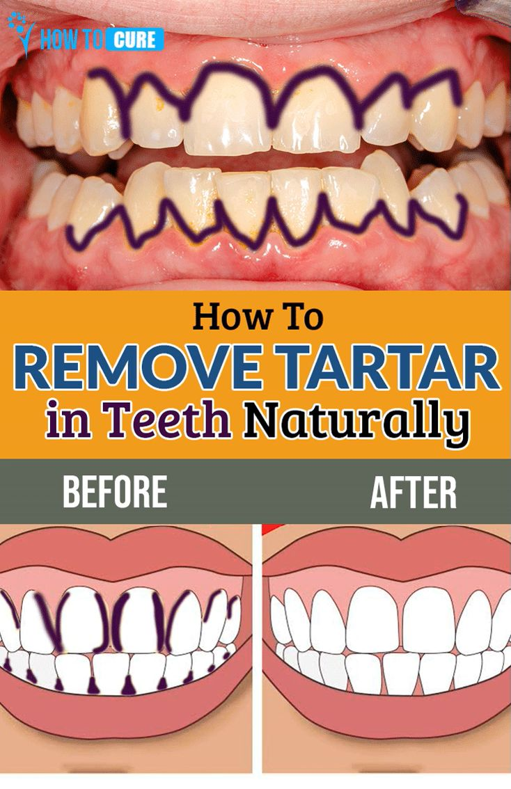 How to remove tartar in teeth naturally howtocure video