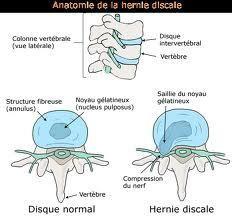 Hernie discale, dos, lumbago, explication psychosomatique, causes émotionnelles