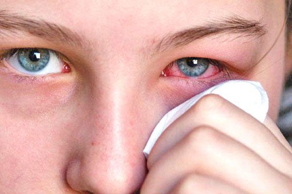La conjuntivitis consiste en la inflamación o infección dela membrana delgada y transparente (conjuntiva) que cubre el blanco de los ojos y el interior de los párpados. Es una afectación ocular común y sumamente contagiosa y puede afectar tanto a niños como a adultos. La conjuntivitis puede ser: De origen bacteriana (contagiada por el contacto …