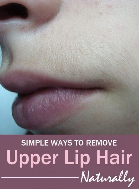 How Can I Remove My Upper Lip Hair Naturally