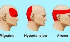 Comment se débarrasser d'un mal de tête en 5 minutes!!