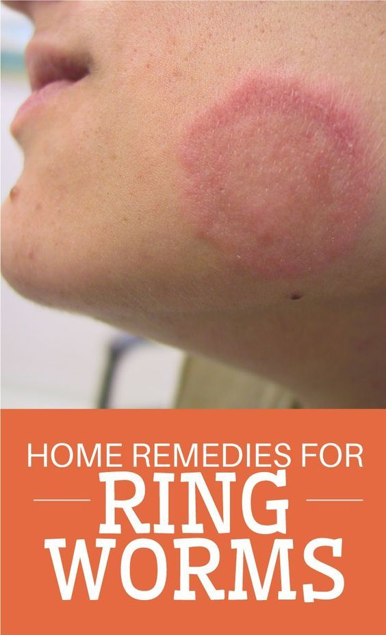 23 Beneficial Home Remedies for Ringworm
