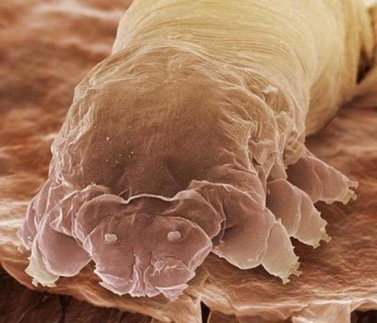 кожа лица под микроскопом фото такой голове